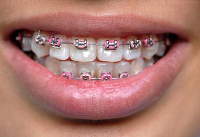 Orthodontic / Braces Treatment