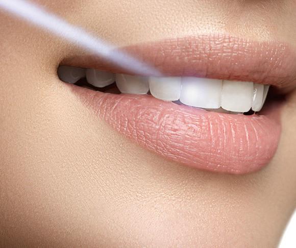 Teeth Cleaning and Polishing