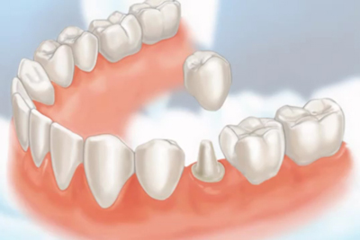 Crown/ Bridge/ Prosthodontic treatments