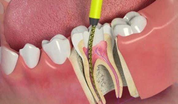 Root canal Treatments/ Endodontic treatments