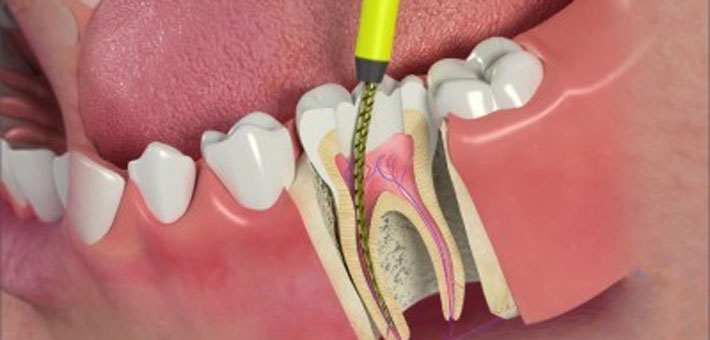 Root Canal Treatments Endodontic Treatments Perfect